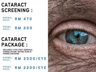 Cataract Screening